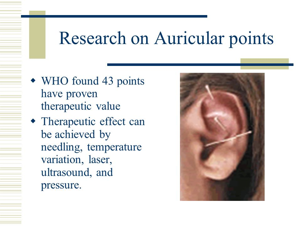 Research on Auricular points WHO found 43 points have proven therapeutic value Therapeutic effect can be achieved by needling, temperature variation,