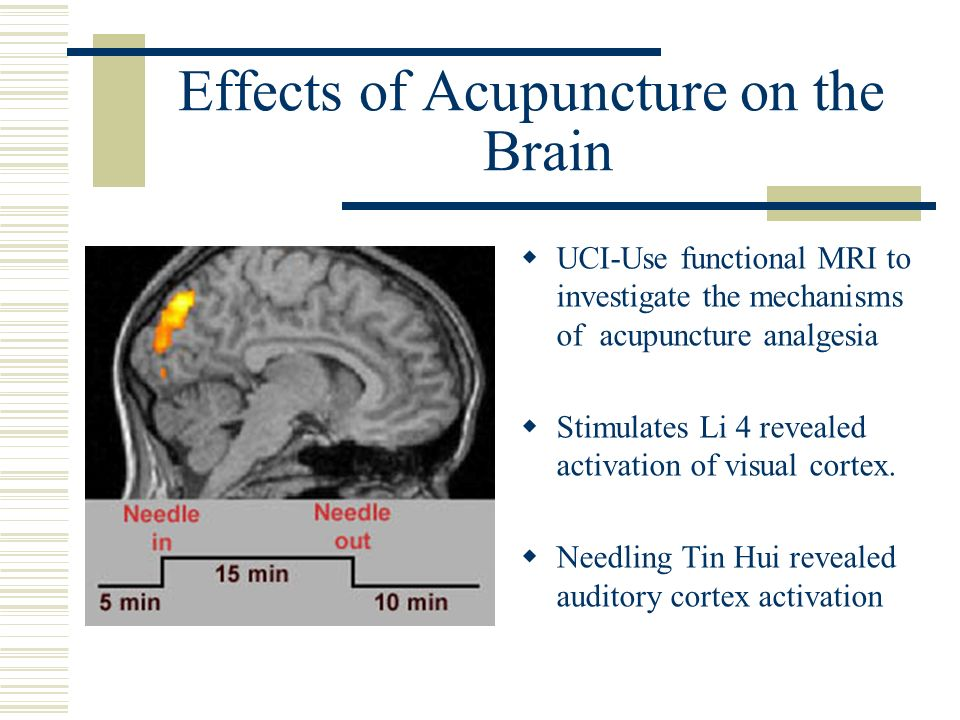 Effects of Acupuncture on the Brain UCI-Use functional MRI to investigate the mechanisms of acupuncture analgesia Stimulates Li 4 revealed activation