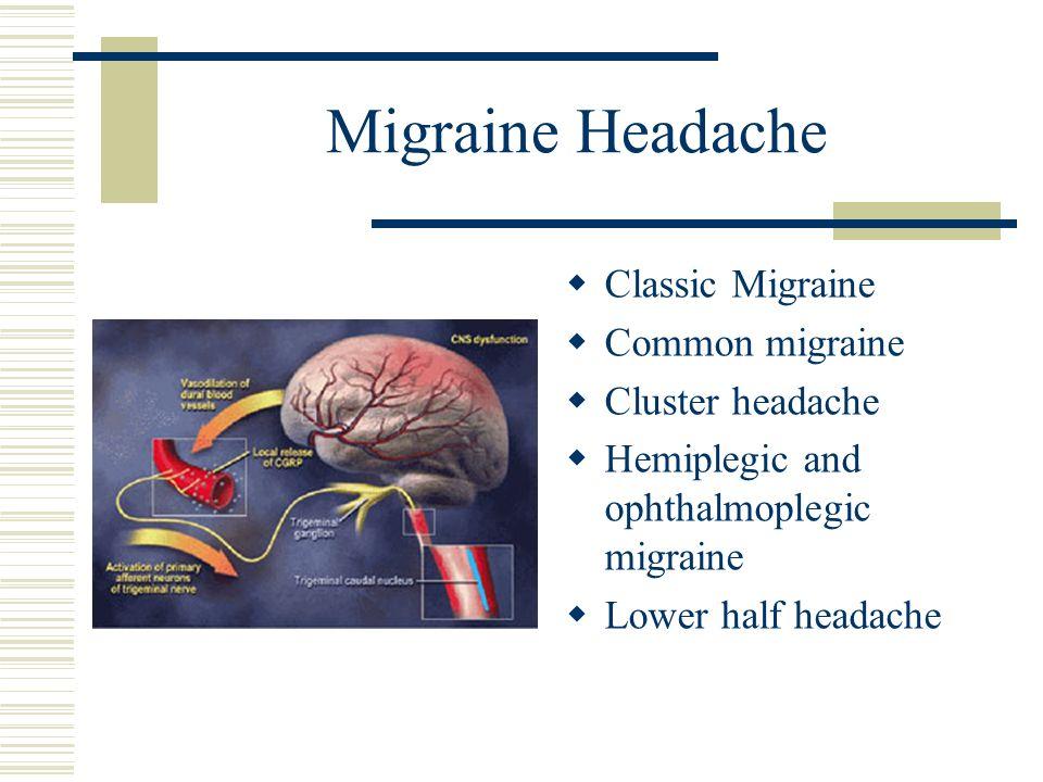 Migraine Headache Classic Migraine Common migraine Cluster headache Hemiplegic and ophthalmoplegic migraine Lower half headache