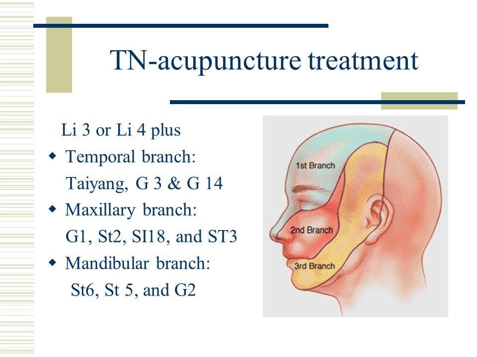 TN-acupuncture treatment Li 3 or Li 4 plus Temporal branch: Taiyang, G 3 & G 14 Maxillary branch: G1, St2, SI18, and ST3 Mandibular branch: St6, St 5,