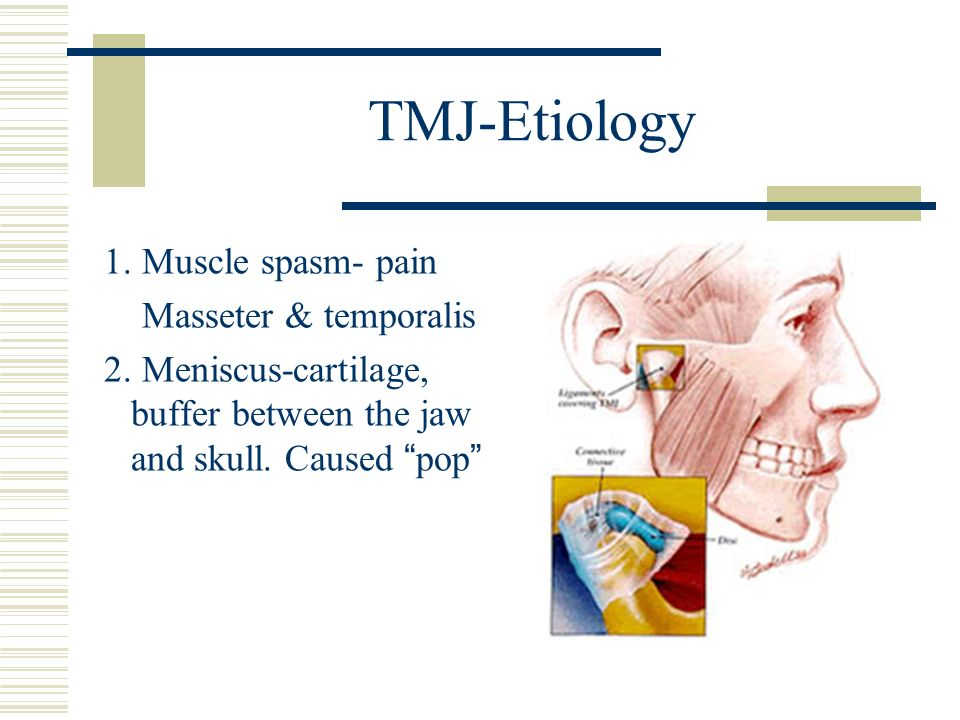 TMJ-Etiology 1. Muscle spasm- pain Masseter & temporalis 2. Meniscus-cartilage, buffer between the jaw and skull. Caused pop