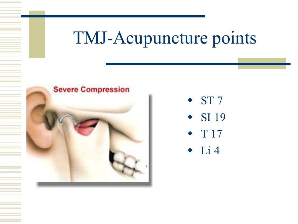 TMJ-Acupuncture points ST 7 SI 19 T 17 Li 4