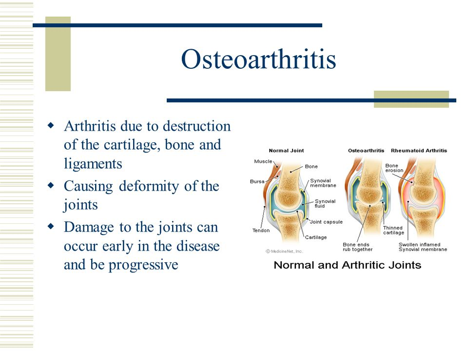 Osteoarthritis Arthritis due to destruction of the cartilage, bone and ligaments Causing deformity of the joints Damage to the joints can occur early