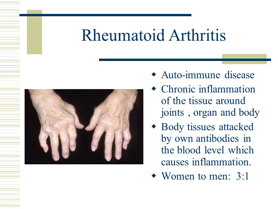 Rheumatoid Arthritis Auto-immune disease Chronic inflammation of the tissue around joints, organ and body Body tissues attacked by own antibodies in t