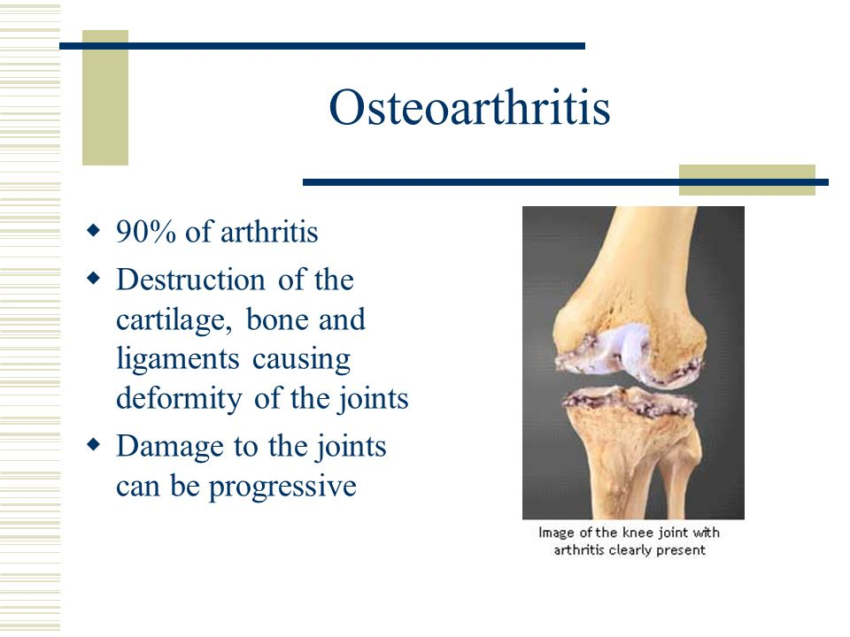 Osteoarthritis 90% of arthritis Destruction of the cartilage, bone and ligaments causing deformity of the joints Damage to the joints can be progressi