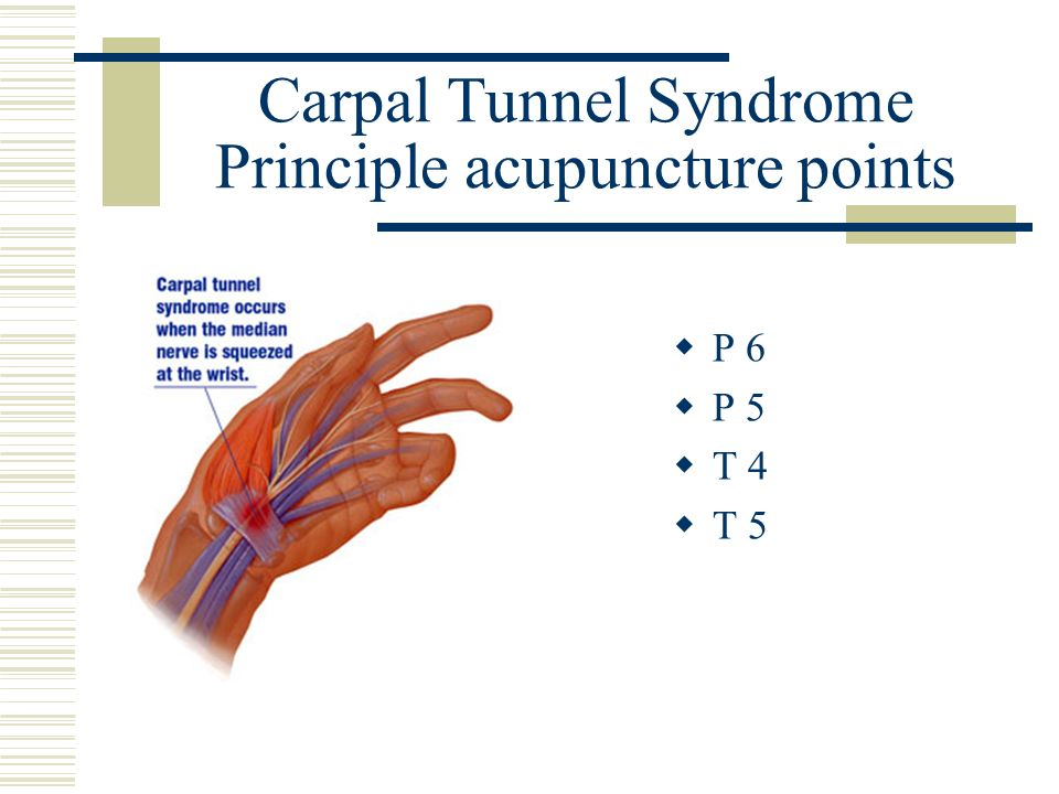 Carpal Tunnel Syndrome Principle acupuncture points P 6 P 5 T 4 T 5