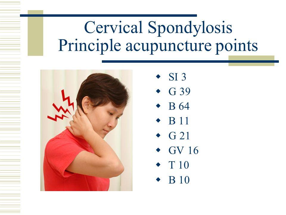 Cervical Spondylosis Principle acupuncture points SI 3 G 39 B 64 B 11 G 21 GV 16 T 10 B 10