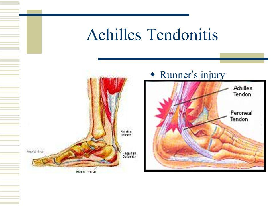 Achilles Tendonitis Runners injury