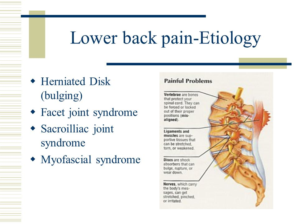 Lower back pain-Etiology Herniated Disk (bulging) Facet joint syndrome Sacroilliac joint syndrome Myofascial syndrome