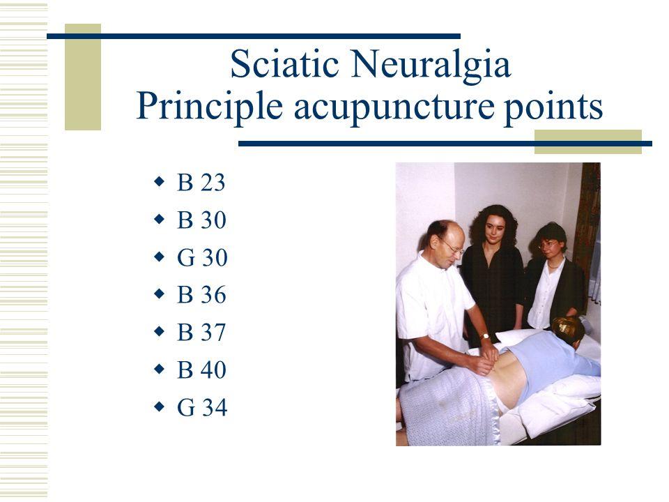 Sciatic Neuralgia Principle acupuncture points B 23 B 30 G 30 B 36 B 37 B 40 G 34