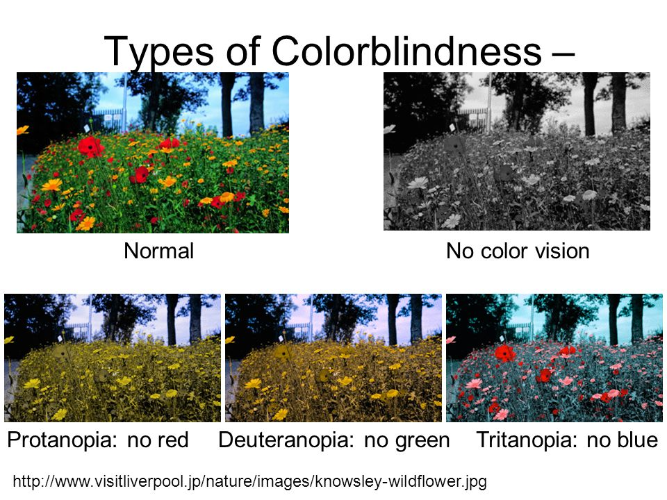 http://www.visitliverpool.jp/nature/images/knowsley-wildflower.jpg Types of Colorblindness – NormalNo color vision Protanopia: no redDeuteranopia: no