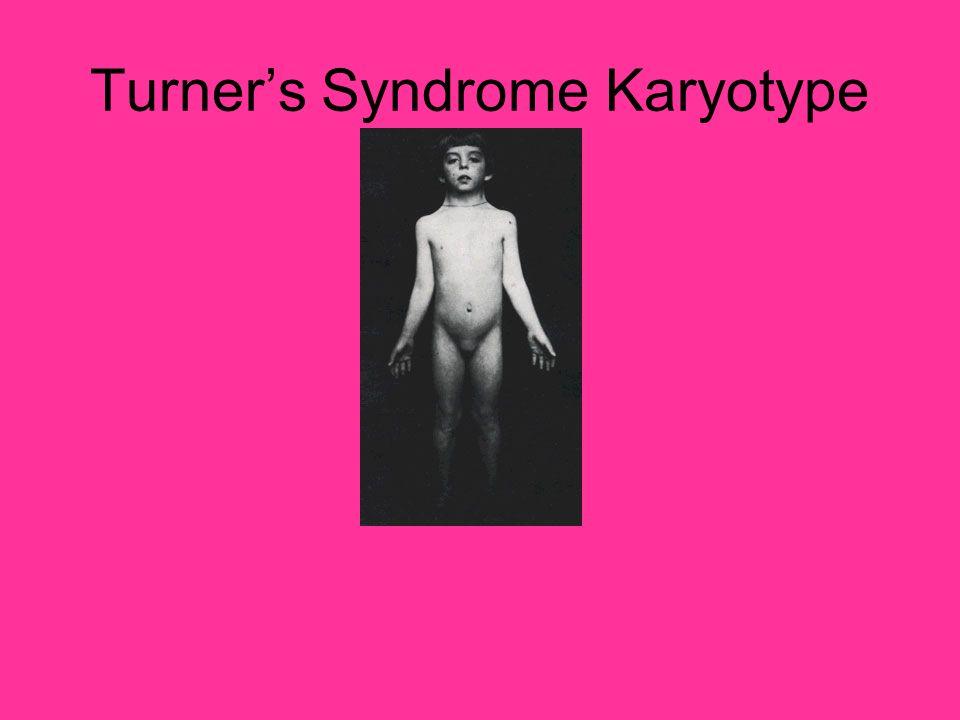 Turners Syndrome Karyotype