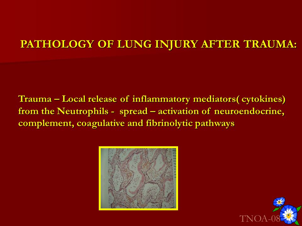 PATHOLOGY OF LUNG INJURY AFTER TRAUMA: Trauma – Local release of inflammatory mediators( cytokines) from the Neutrophils - spread – activation of neur