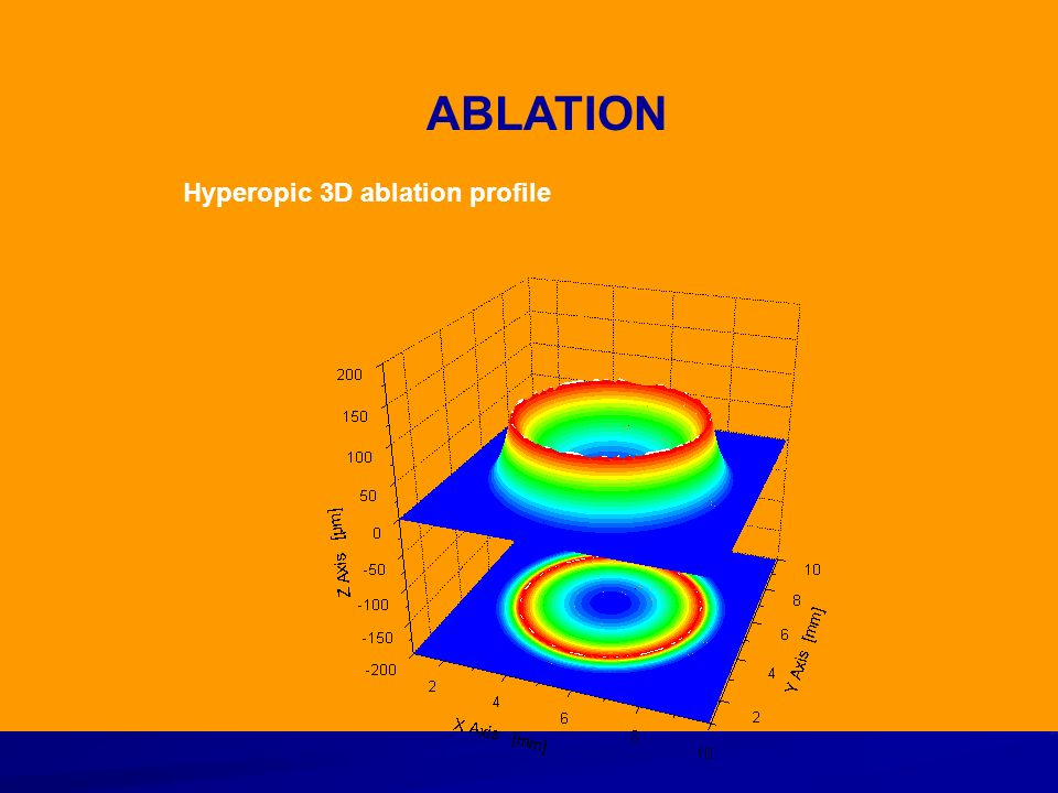 Hyperopic 3D ablation profile ABLATION