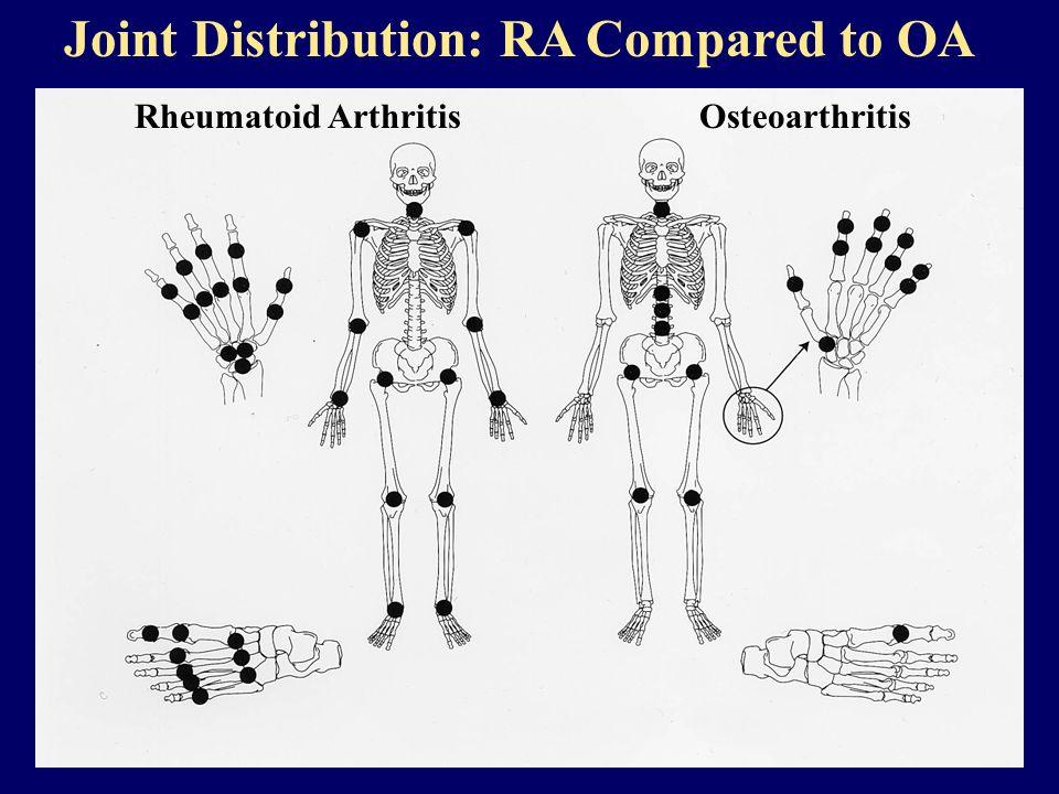 Joint Distribution: RA Compared to OA Rheumatoid Arthritis Osteoarthritis
