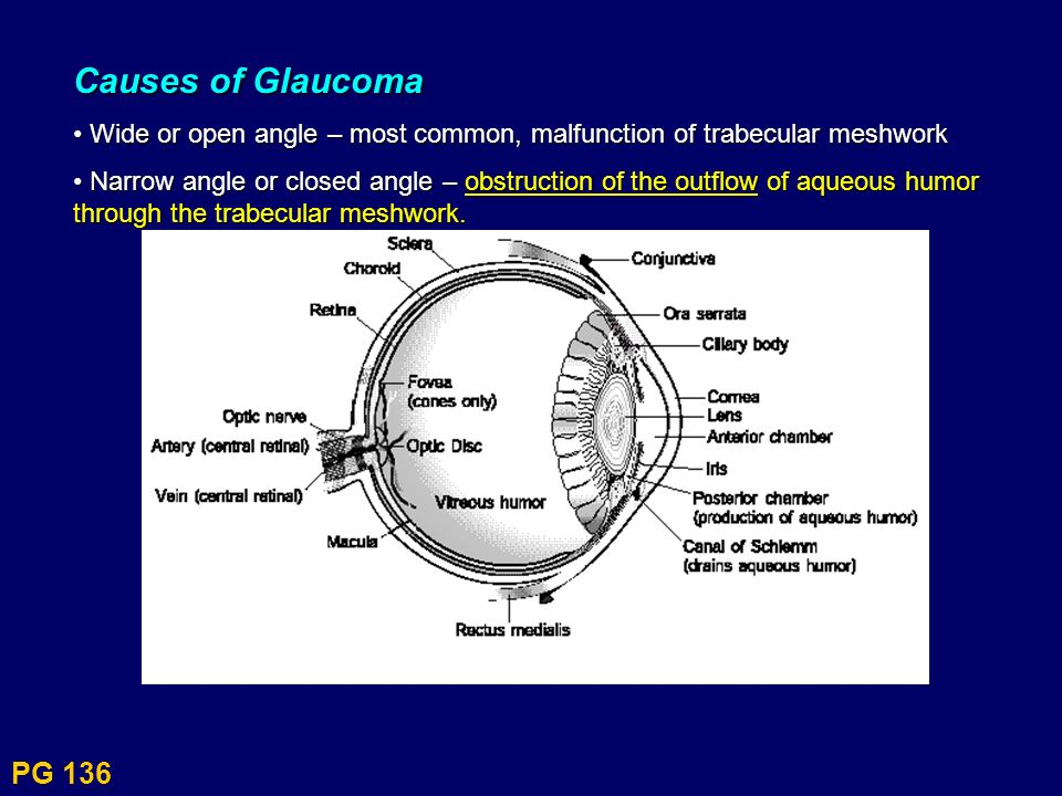 PG 136 Causes of Glaucoma Wide or open angle – most common, malfunction of trabecular meshwork Wide or open angle – most common, malfunction of trabec