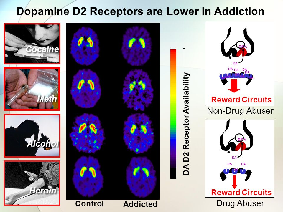 DA D2 Receptor Availability Control Addicted Cocaine Alcohol DA Reward Circuits DA Reward Circuits DA Drug Abuser Non-Drug Abuser Heroin Meth Dopamine D2 Receptors are Lower in Addiction DA