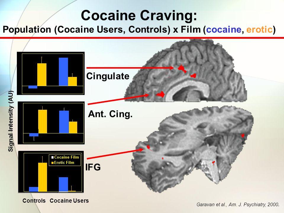 Cocaine Film Cocaine Craving: Population (Cocaine Users, Controls) x Film (cocaine, erotic) Garavan et al., Am.