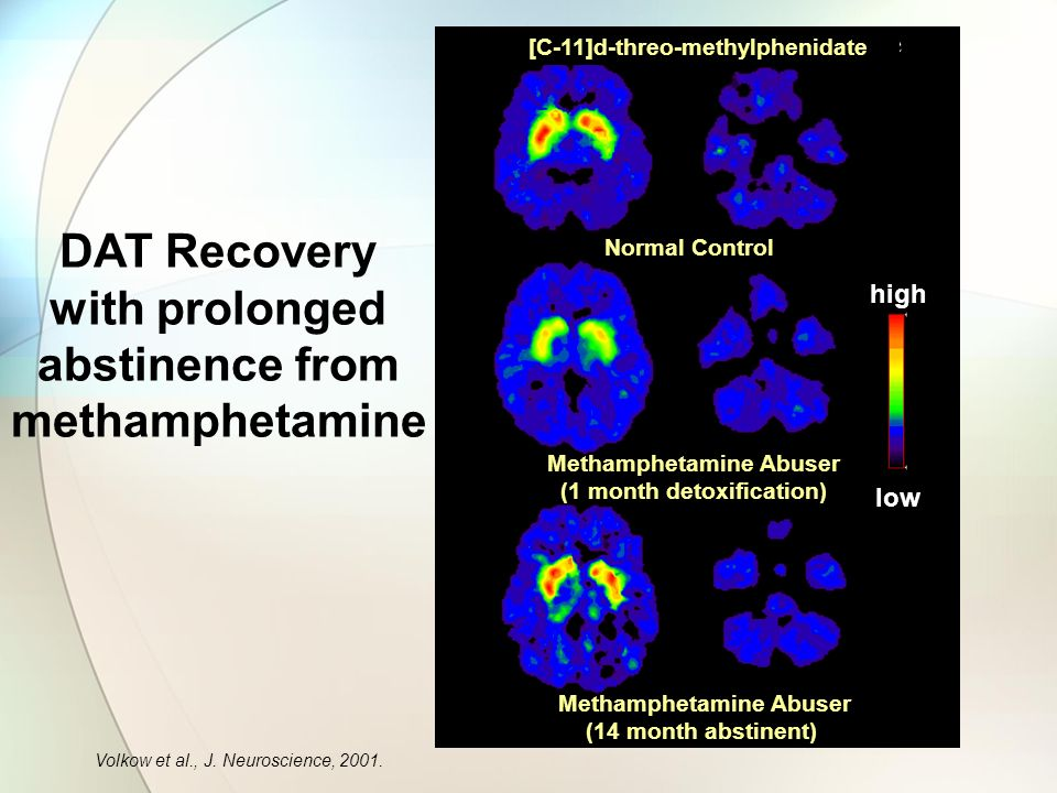 DAT Recovery with prolonged abstinence from methamphetamine [C-11]d-threo-methylphenidate Volkow et al., J.