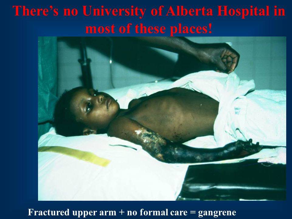 Fractured upper arm + no formal care = gangrene Theres no University of Alberta Hospital in most of these places!