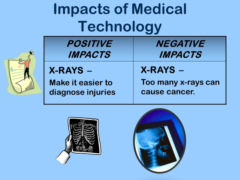 Impacts of Medical Technology POSITIVE IMPACTS NEGATIVE IMPACTS X-RAYS – Make it easier to diagnose injuries X-RAYS – Too many x-rays can cause cancer