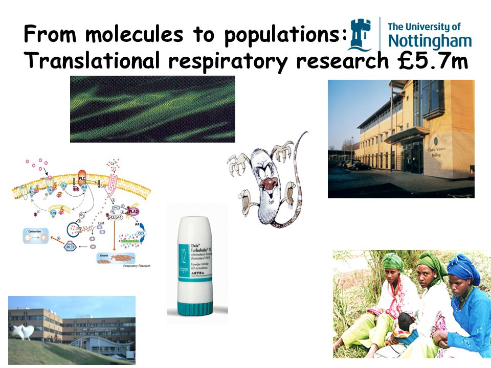 From molecules to populations: Translational respiratory research £5.7m