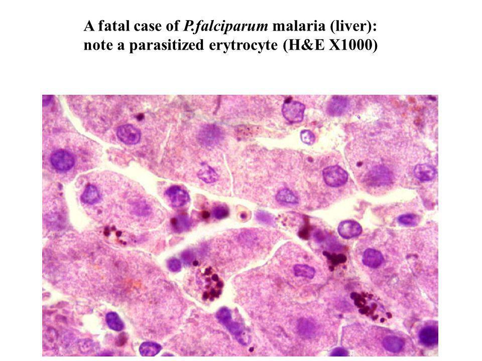 A fatal case of P.falciparum malaria (liver): note a parasitized erytrocyte (H&E X1000)