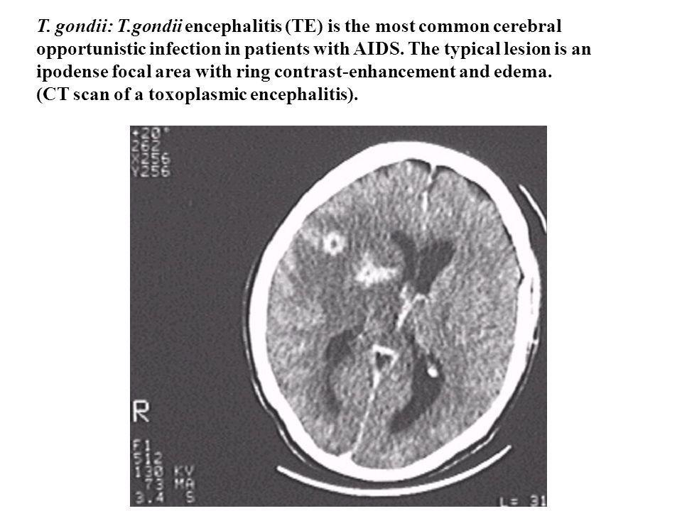 T. gondii: T.gondii encephalitis (TE) is the most common cerebral opportunistic infection in patients with AIDS. The typical lesion is an ipodense foc