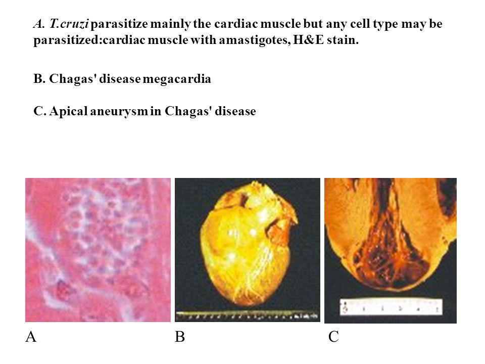 A. T.cruzi parasitize mainly the cardiac muscle but any cell type may be parasitized:cardiac muscle with amastigotes, H&E stain. B. Chagas' disease me