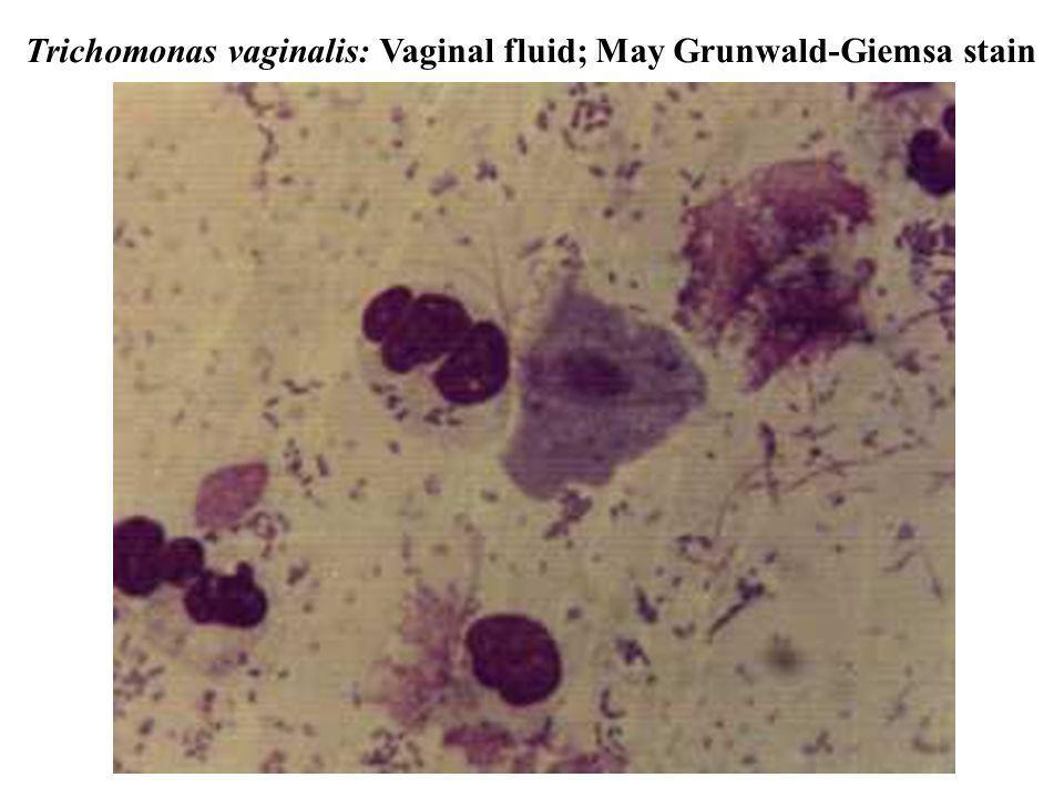 Trichomonas vaginalis: Vaginal fluid; May Grunwald-Giemsa stain