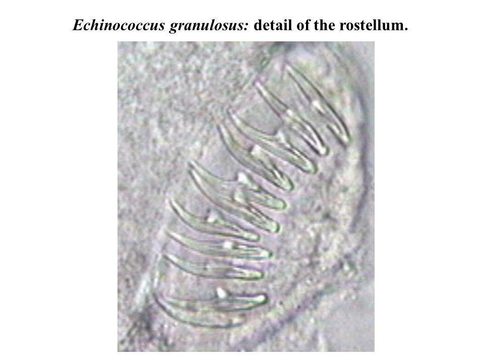 Echinococcus granulosus: detail of the rostellum.