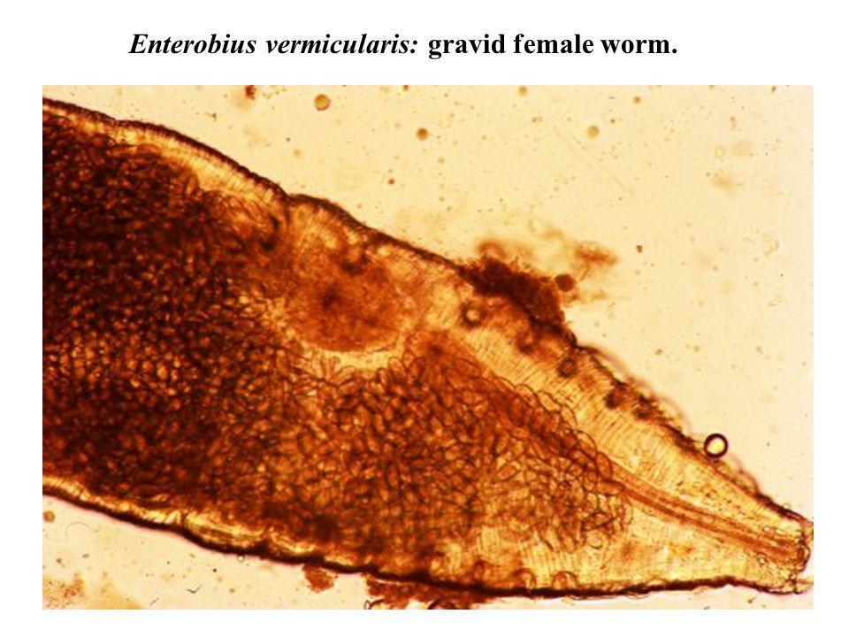 Enterobius vermicularis: gravid female worm.