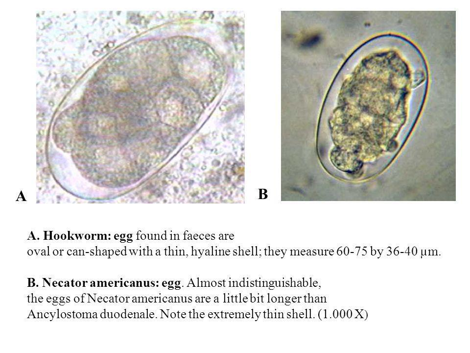 A. Hookworm: egg found in faeces are oval or can-shaped with a thin, hyaline shell; they measure 60-75 by 36-40 µm. B. Necator americanus: egg. Almost
