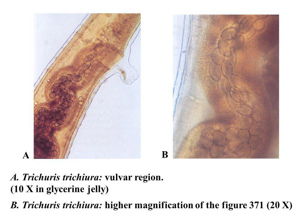 A. Trichuris trichiura: vulvar region. (10 X in glycerine jelly) B. Trichuris trichiura: higher magnification of the figure 371 (20 X) A B