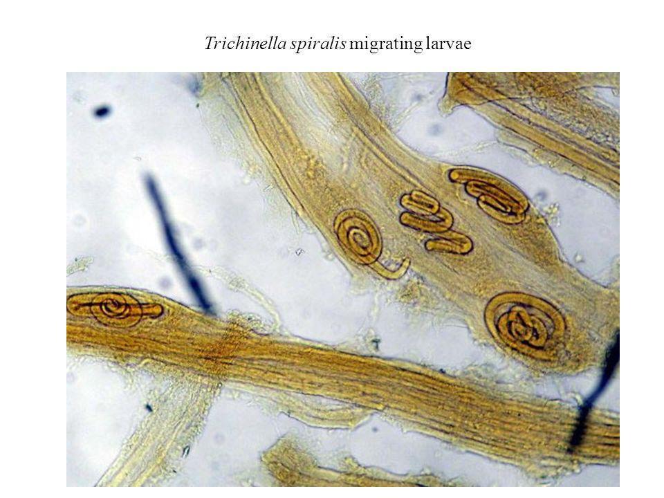 Trichinella spiralis migrating larvae