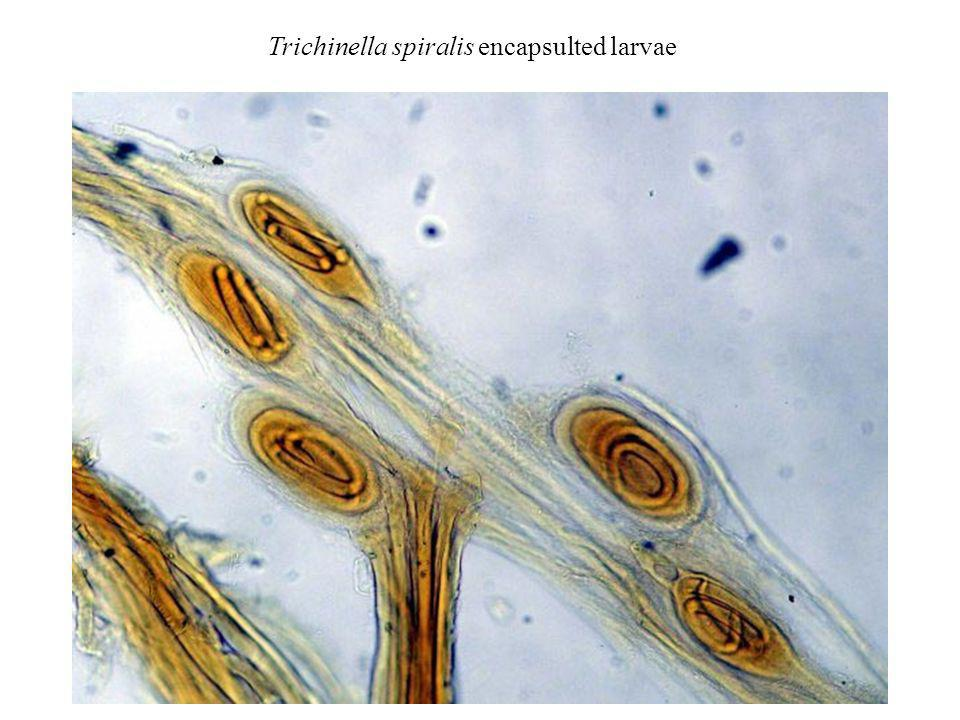 Trichinella spiralis encapsulted larvae
