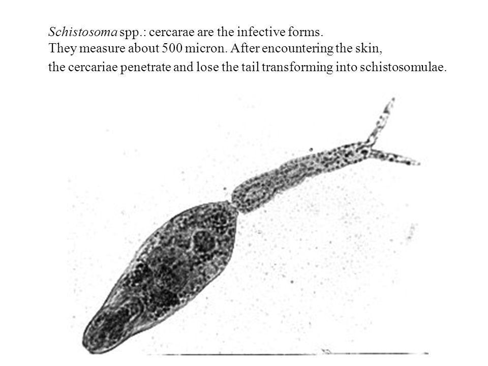 Schistosoma spp.: cercarae are the infective forms. They measure about 500 micron. After encountering the skin, the cercariae penetrate and lose the t