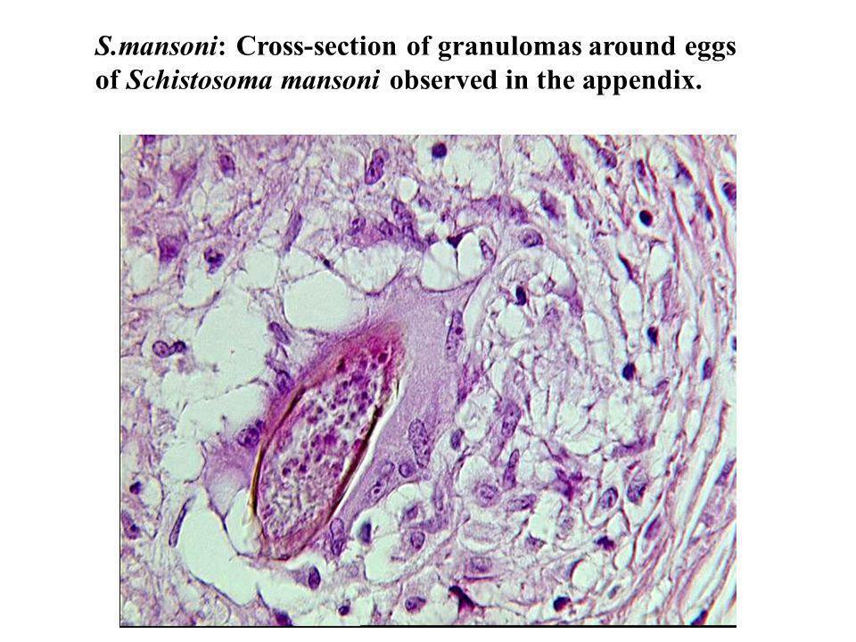 S.mansoni: Cross-section of granulomas around eggs of Schistosoma mansoni observed in the appendix.