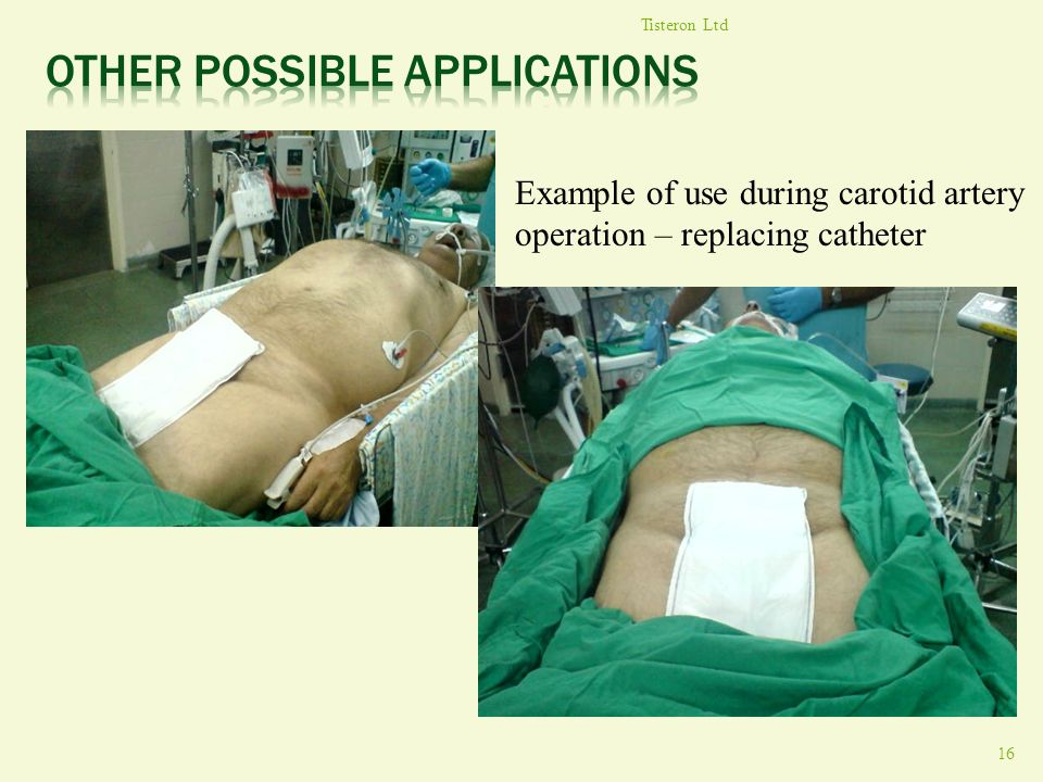 Tisteron Ltd 16 Example of use during carotid artery operation – replacing catheter