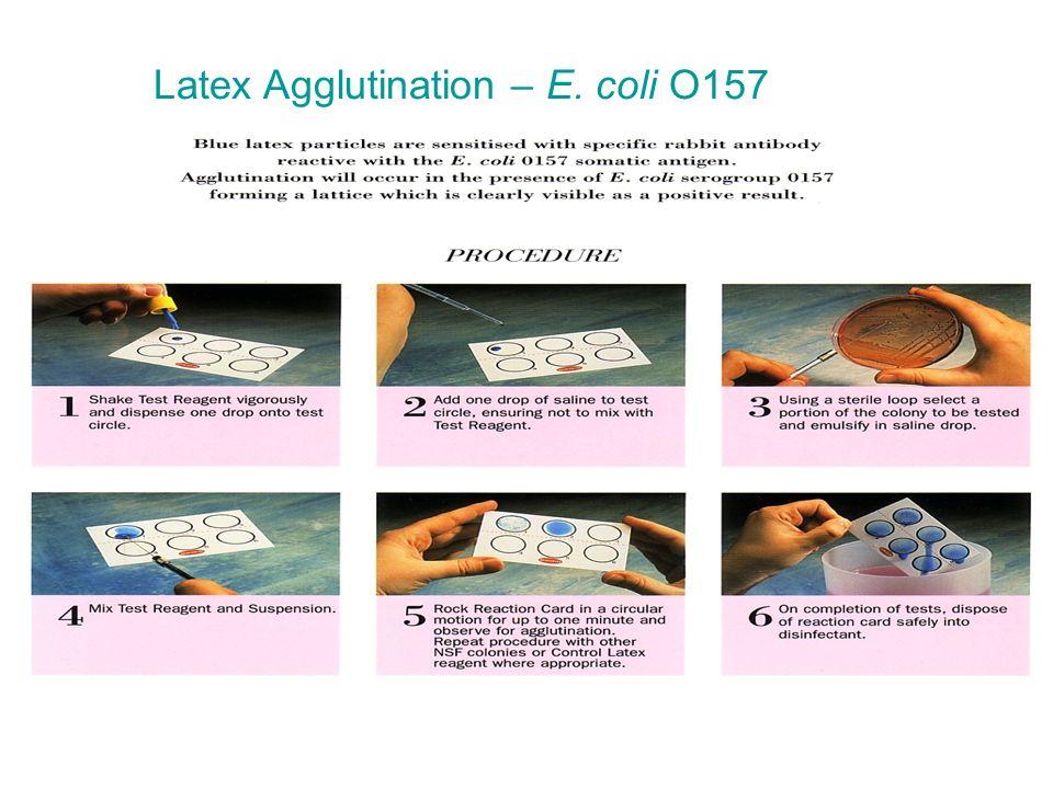 Latex Agglutination – E. coli O157