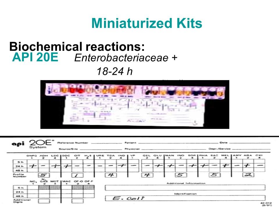 Miniaturized Kits API 20E Enterobacteriaceae + 18-24 h Generate profile # Biochemical reactions: