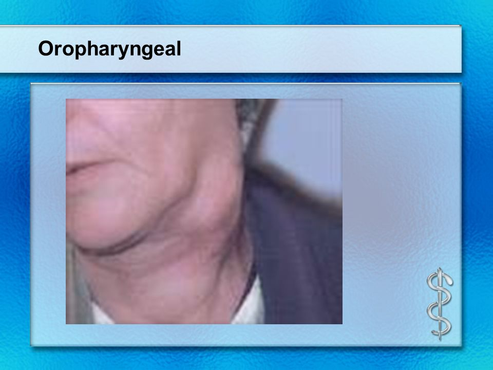 Oropharyngeal