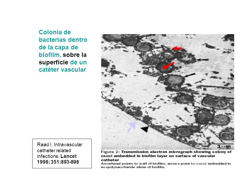Colonia de bacterias dentro de la capa de biofilm, sobre la superficie de un catéter vascular Raad I. Intravascular catheter related infections. Lance