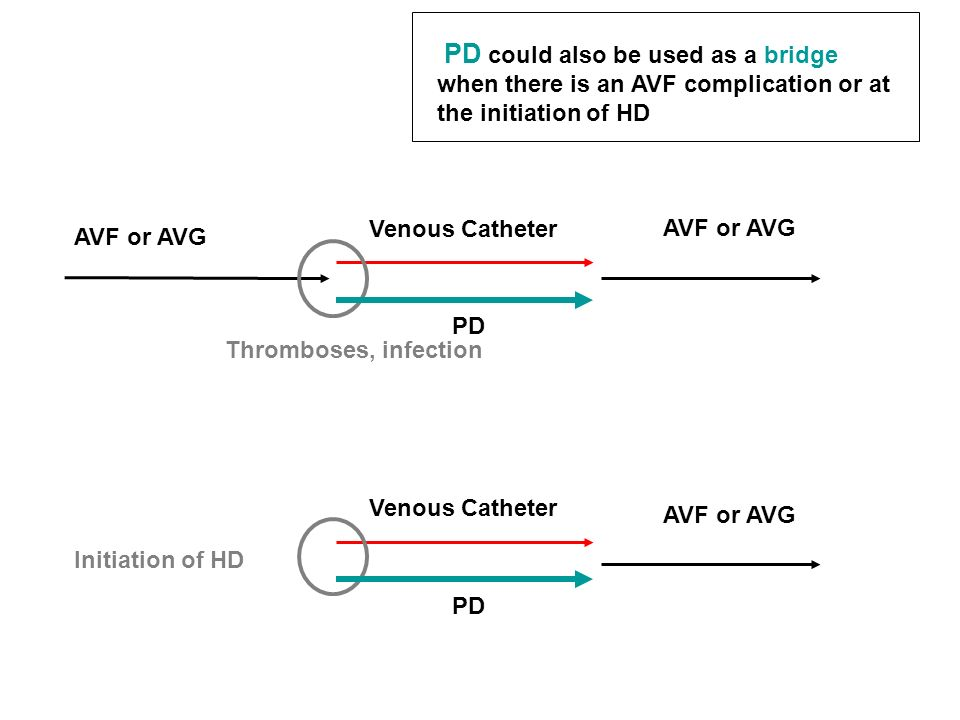 Venous Catheter AVF or AVG Initiation of HD Venous Catheter AVF or AVG PD PD could also be used as a bridge when there is an AVF complication or at th