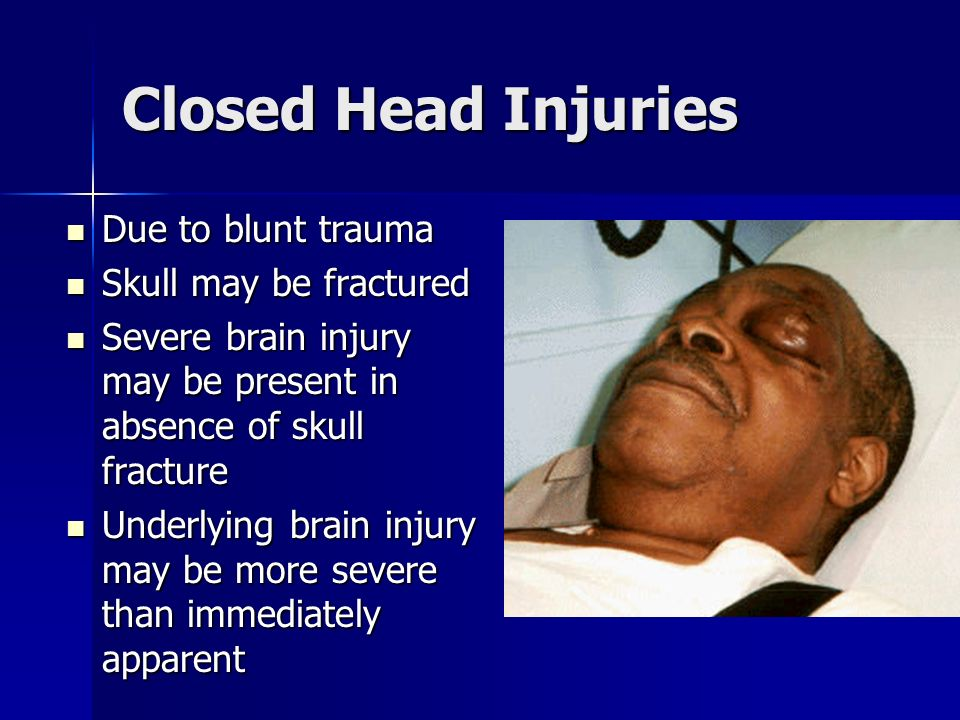 Closed Head Injuries Due to blunt trauma Due to blunt trauma Skull may be fractured Skull may be fractured Severe brain injury may be present in absen