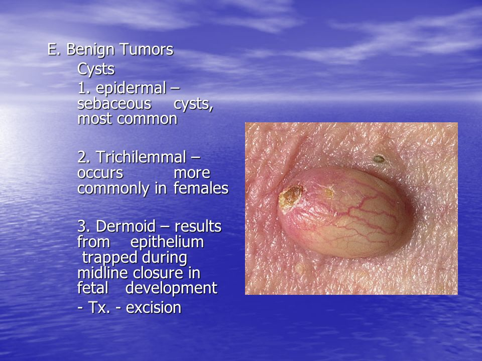 E. Benign Tumors Cysts 1. epidermal – sebaceous cysts, most common 2. Trichilemmal – occurs more commonly in females 3. Dermoid – results from epithel