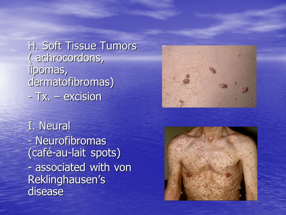 H. Soft Tissue Tumors ( achrocordons, lipomas, dermatofibromas) - Tx. – excision I. Neural - Neurofibromas (café-au-lait spots) - associated with von