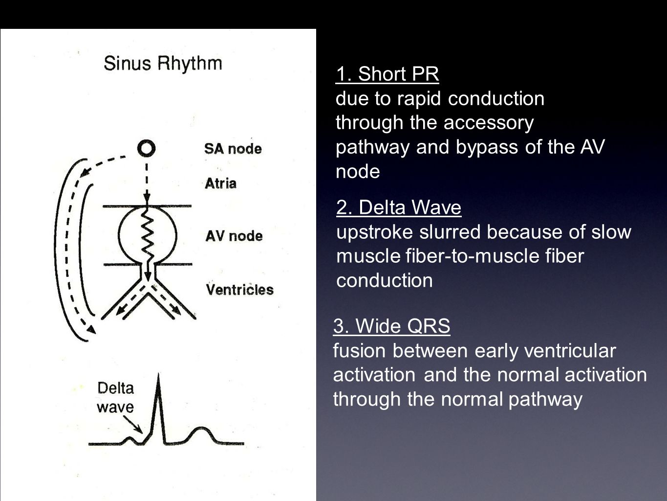 1. Short PR due to rapid conduction through the accessory pathway and bypass of the AV node 2. Delta Wave upstroke slurred because of slow muscle fibe