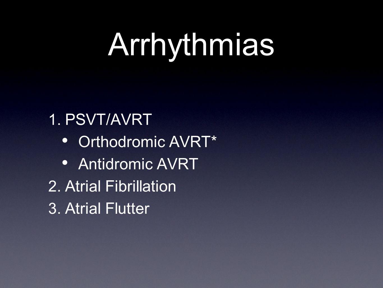 Arrhythmias 1. PSVT/AVRT Orthodromic AVRT* Antidromic AVRT 2. Atrial Fibrillation 3. Atrial Flutter