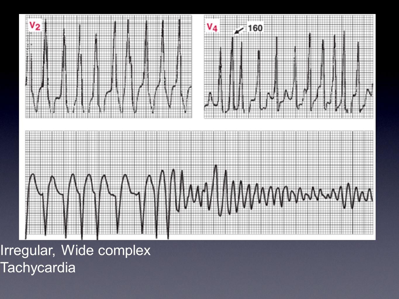 Irregular, Wide complex Tachycardia